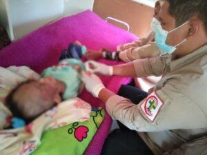 Anak usia tujuh tahun menderita marasmus malnutrisi di Pangkep.(Ist).